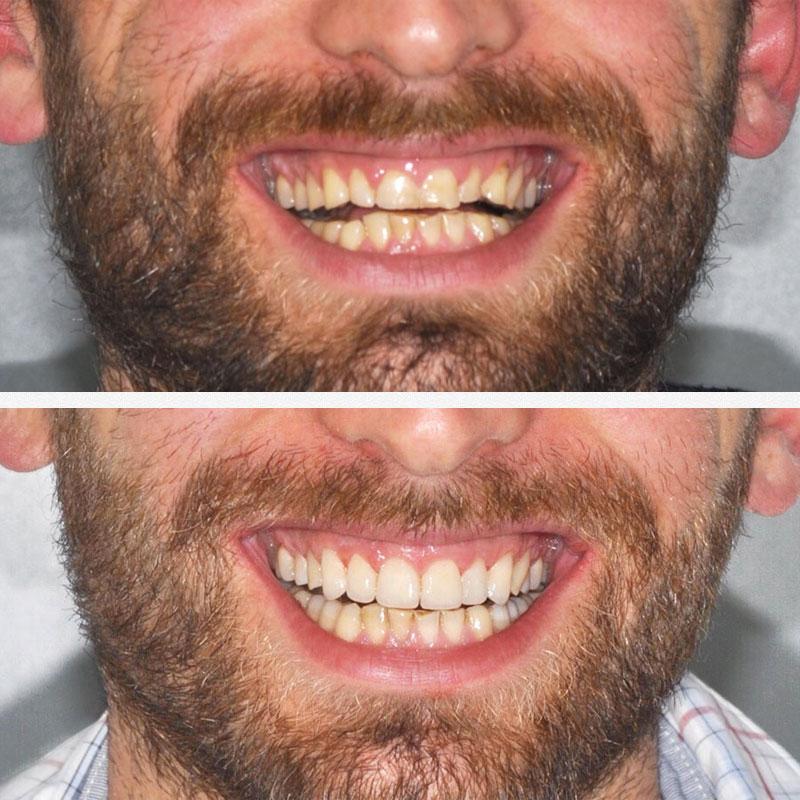 smile-make-square