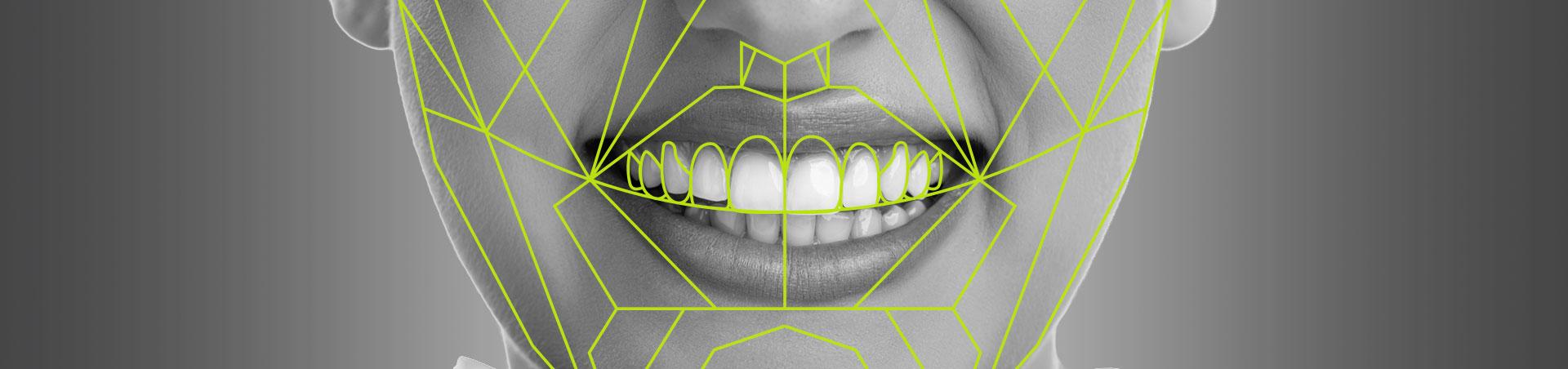 Estetica del sorriso - Desktop