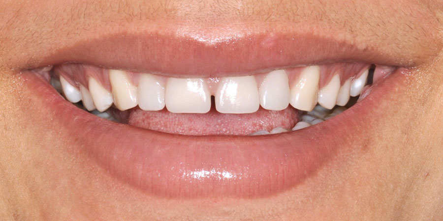 Estetica del sorriso - correzione malformazione - Dopo