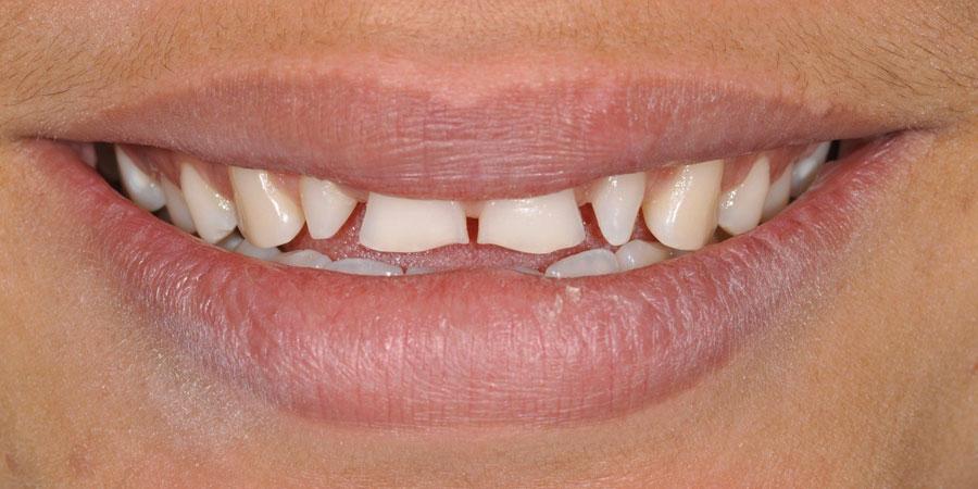 Estetica del sorriso - correzione malformazione - Prima