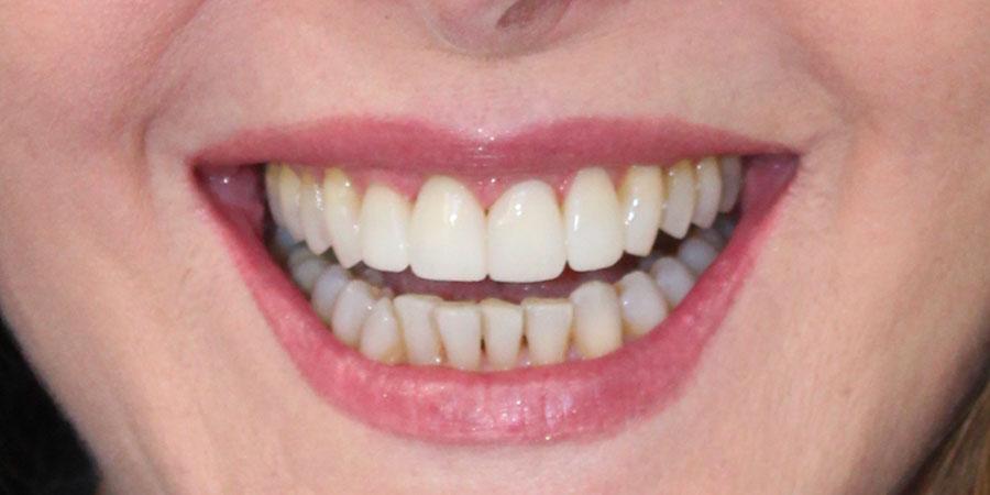 Estetica del sorriso - lifting del sorriso - Dopo