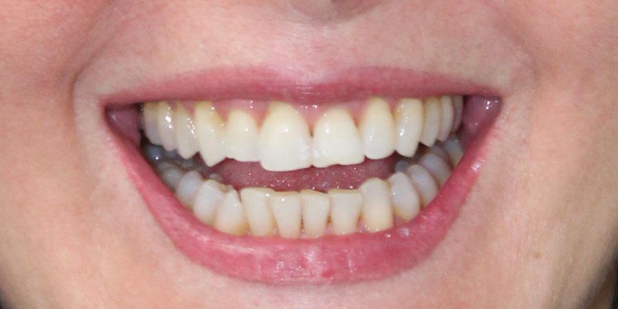 Estetica del sorriso - lifting del sorriso - Prima